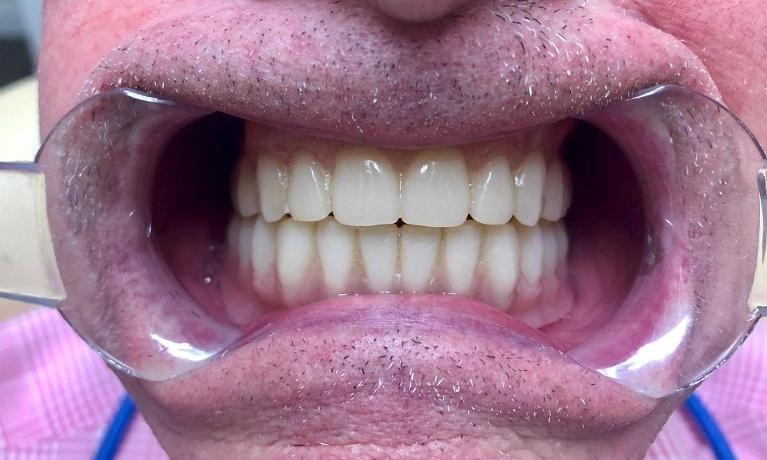 COMPLETE-MAXILLARY-AND-MANDIBULAR-DIGITAL-DENTURES-After-Image