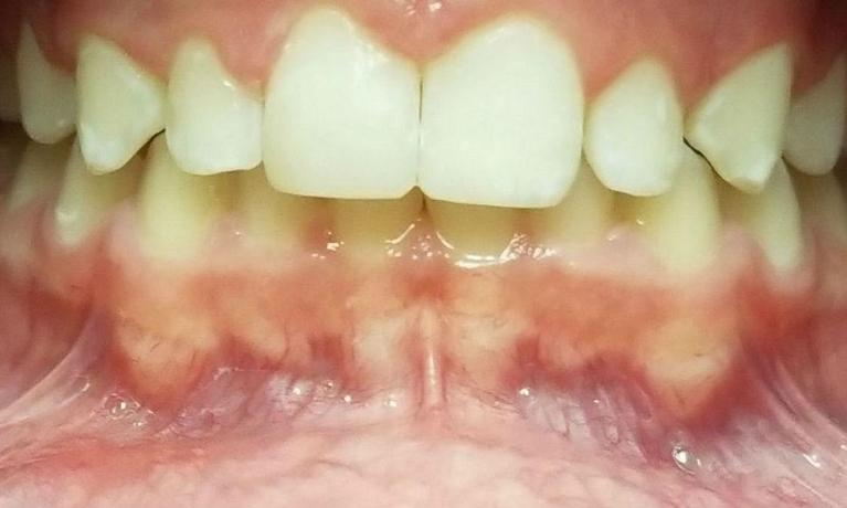 Two-Esthetic-Front-Composite-Resin-Fillings-After-Image