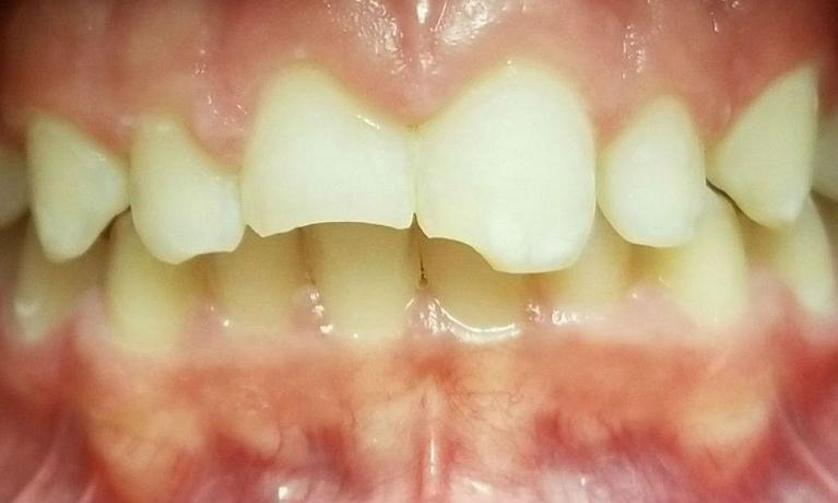 Two-Esthetic-Front-Composite-Resin-Fillings-Before-Image