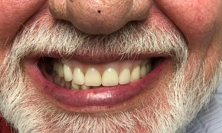 Upper-and-Lower-Digital-Implant-Overdentures-Before-Image